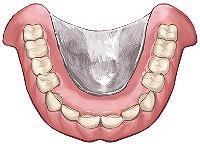金属床義歯(チタン)