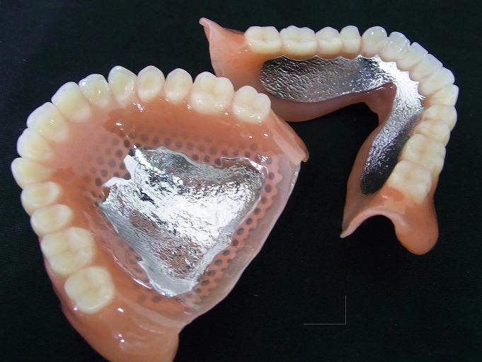 金属床義歯(コバルトクロム)